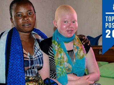 Albinism in Tanzania top blogs 2015