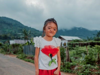 A photo of a girl with Apert syndrome in a white shirt with a flower on it standing on a road in front of a village and mountain.
