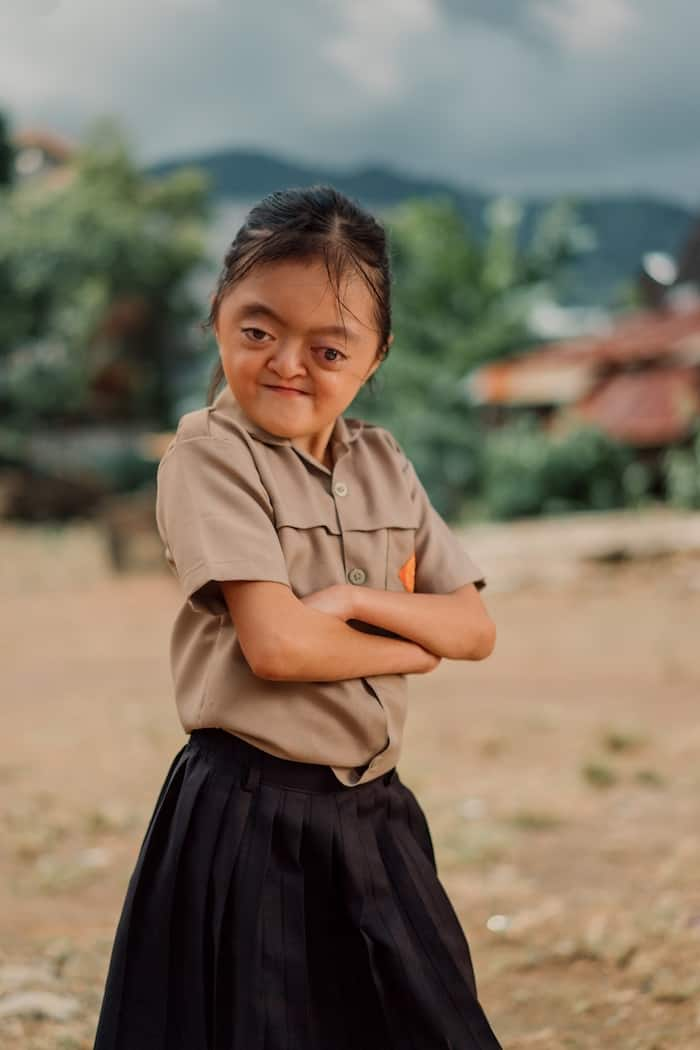 A photo of a girl with Apert Syndrome with her arms crossed in front of her, wearing a brown school uniform.