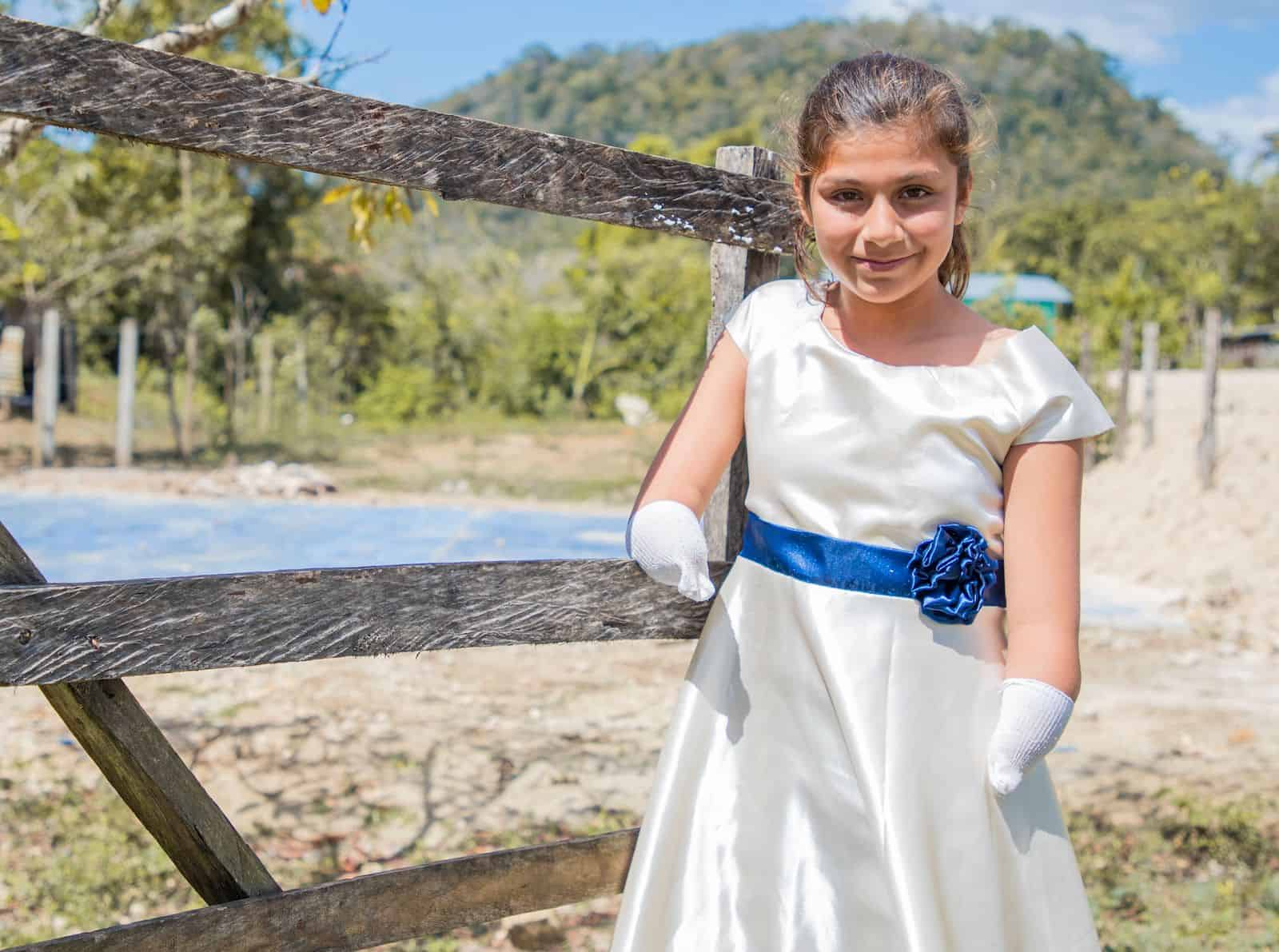 A girl with limb difference wearing a white dress with a blue sash leans against a fence.