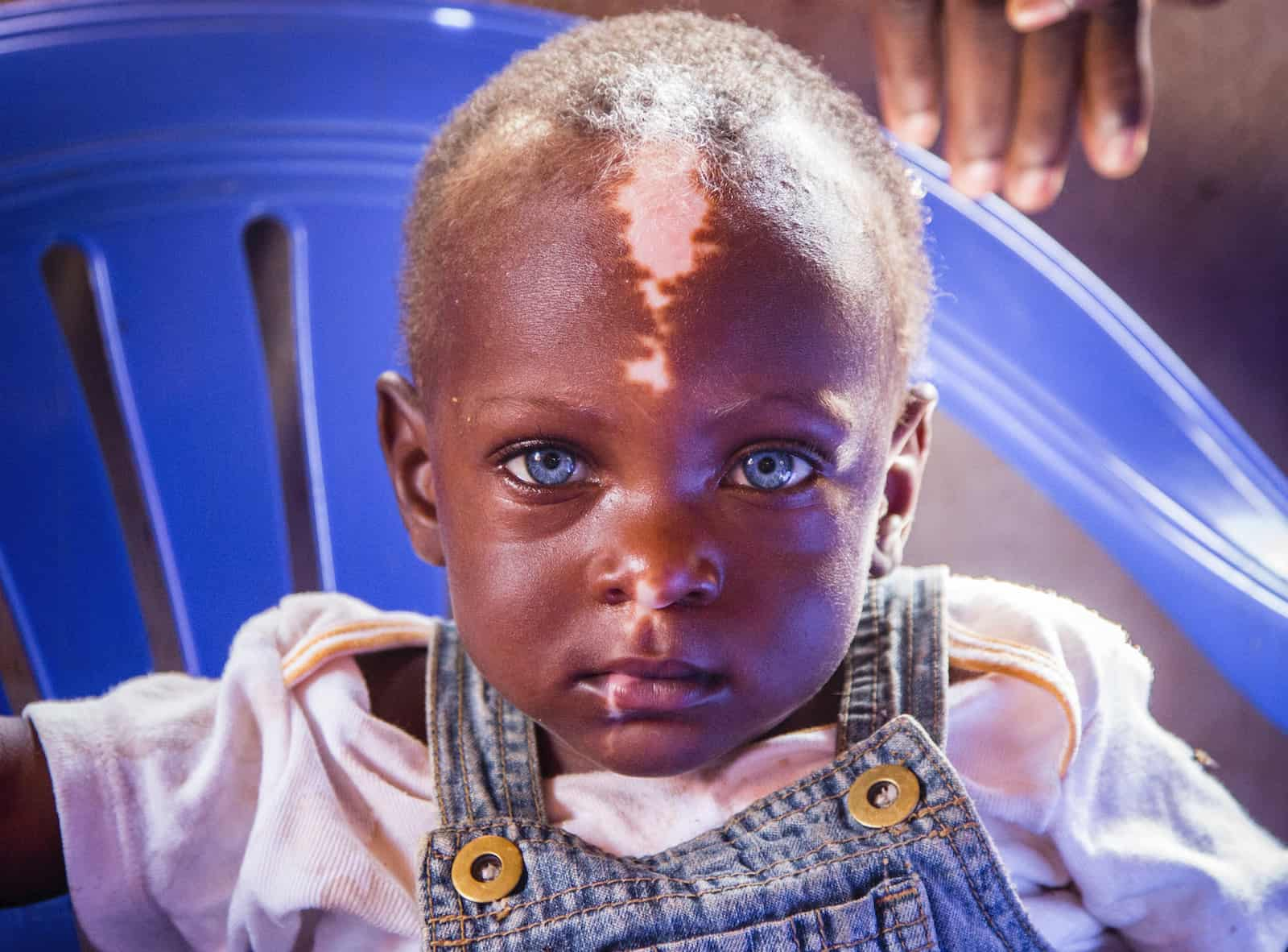 Waardenburg syndrome picture - An up-close photo of a Ugandan boy with blue eyes and a white stripe of skin down his forehead.