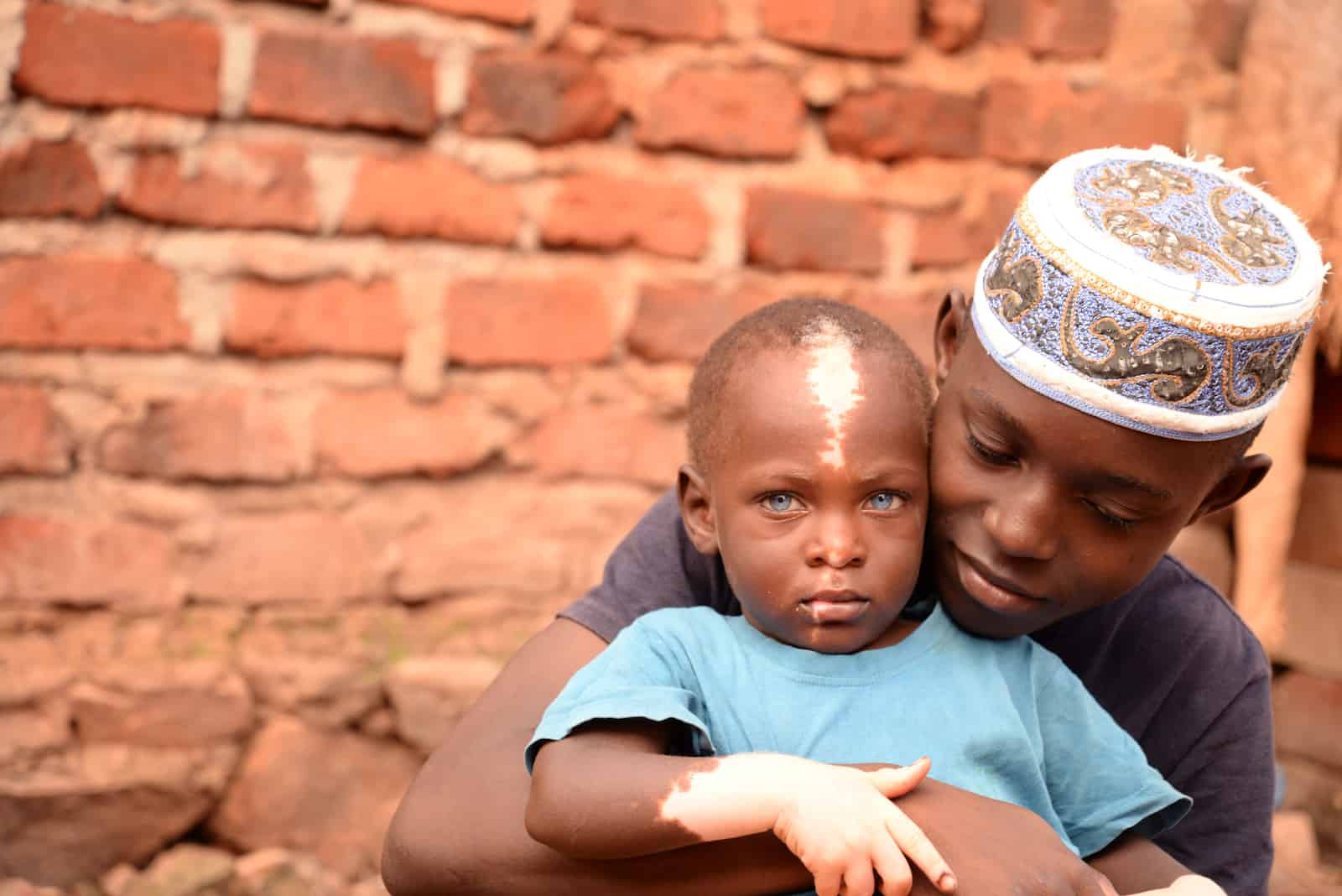 Waardenburg Syndrome picture - A boy wearing a skull cap hugs a toddler with blue eyes and partial albinism.