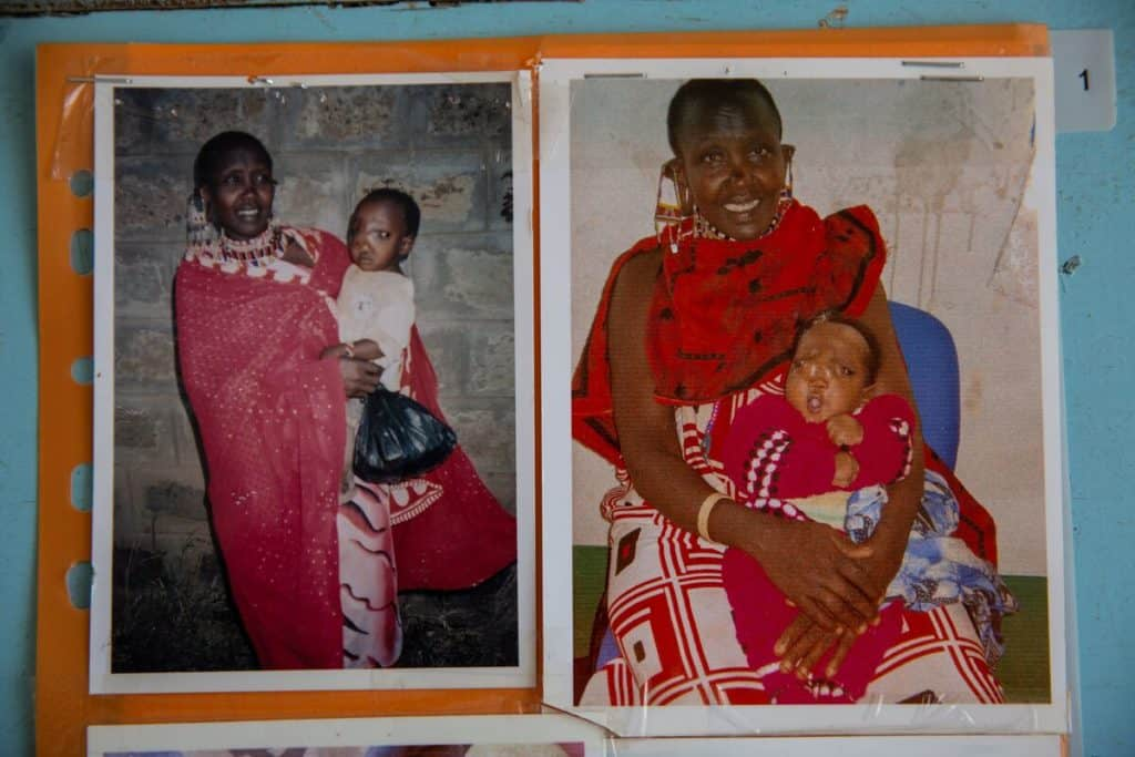 Two photos of a Kenyan woman in brightly colored clothing holding a baby with nasal encephalocele.